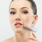 Remove Pimples Overnight by 11 effective techniques