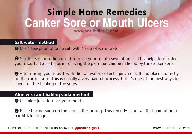 Mouth Ulcer Treatment Home Remedies